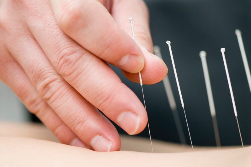 acupuntura para adelgazar