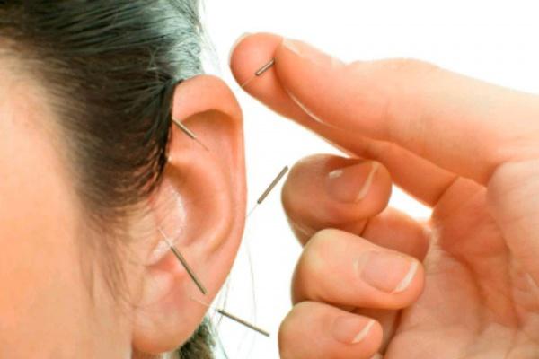 tipos de acupuntura