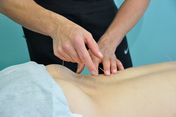 tratamientos de acupuntura
